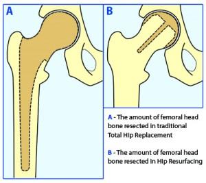 difference between hip surgery resurfacing replacment mcminn birmingham