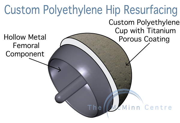 Custom Polyethylene Hip Resurfacing