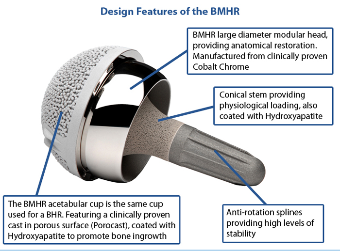 Design Features of the Birmingham Mid Head Resection (BMHR)