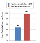 Knee Function Score before and after a Birmingham Knee Replacement
