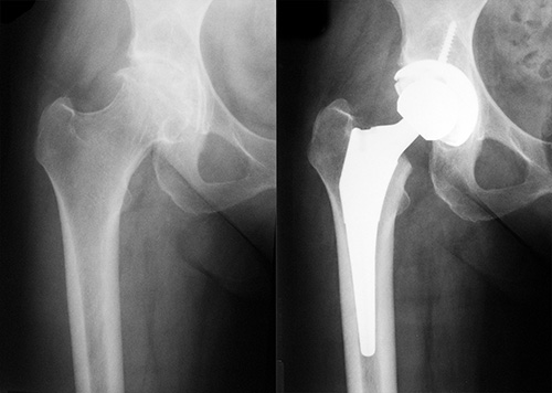 Osteoarthritic Hip Pre and Post Op with Conventional Uncemented Total Hip Replacement