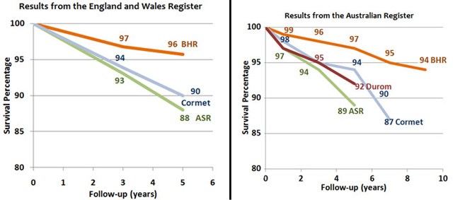 The Cormet 2000 hip resurfacing is also showing higher failure rates than the BHR in the UK Register. The Australian Joint Register shows higher than anticipated failure rates with the ASR, Durom, Cormet 2000 and Bionik resurfacings