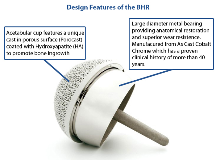The Birmingham Hip Resurfacing (BHR)