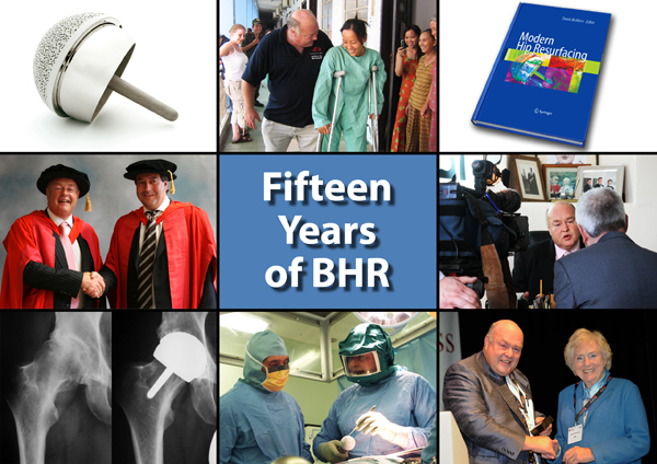 fifteen year birmingham hip resurfacing anniversary
