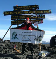 Patient with Bilateral Birmingham Hip Resurfacings climbs Kilimanjaro